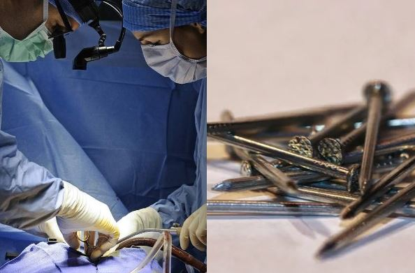 Doctors find 122 nails in a man's stomach airnewsonline